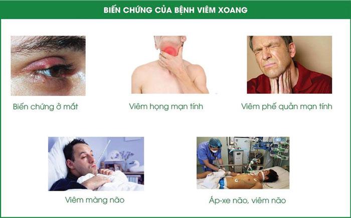 trieu-chung-viem-xoang-mui-1