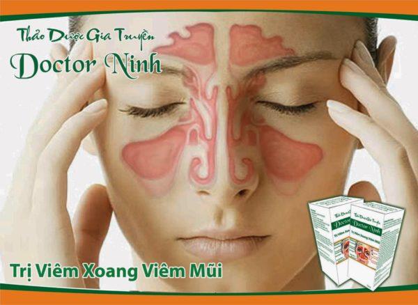 Thảo dược điều trị viêm xoang Doctor Ninh bán ở đâu?