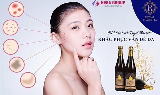 đối tượng sử dụng nước uống đẹp da royal placenta-thaoduockhoe.com