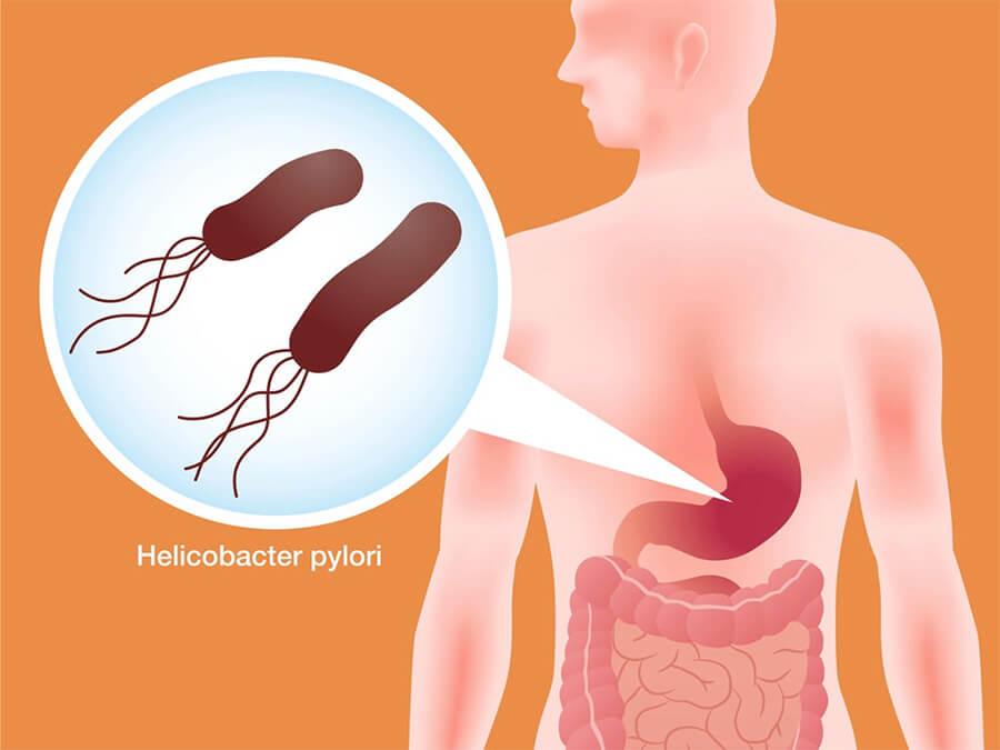 VI khuẩn HP-Thaoduockhoecom